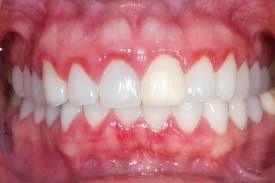Teeth Cleanings Explained by Plymouth, MN Dentist