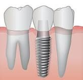 Dental Implants from Plymouth, MN Dentist