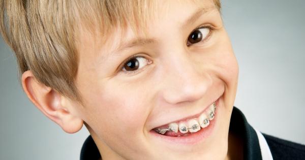 Braces-for-children-check-plymouth-dentist.jpg