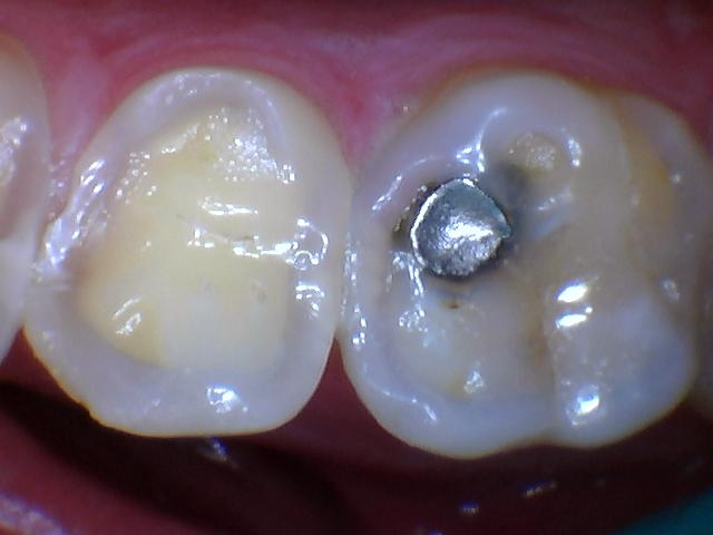 Acid erosion has slowly removed the enamel on the chewing surfaces of this persons upper back teeth