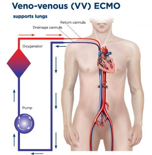VV_ECMO image.png