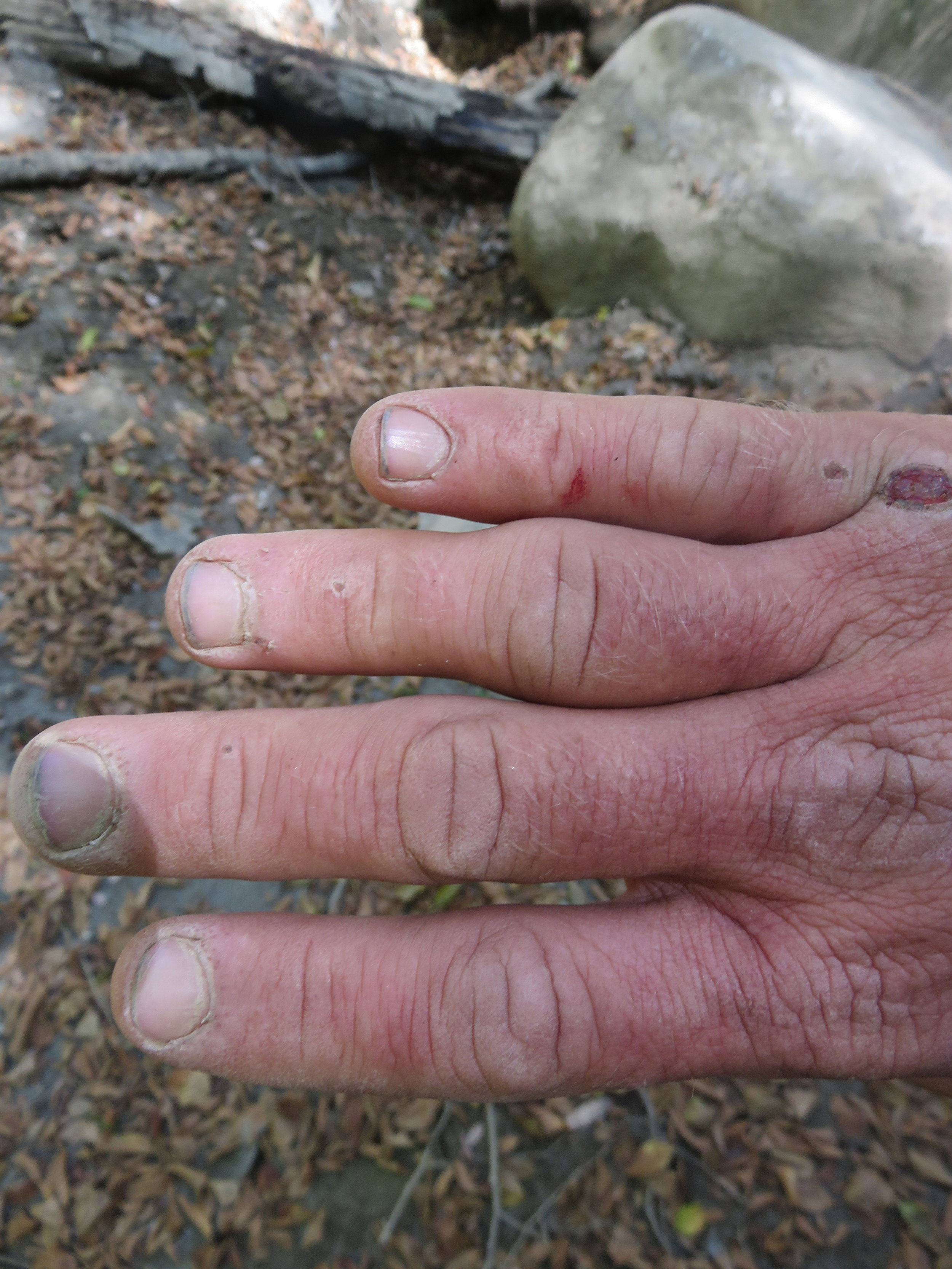My beat up hand, and swollen knuckle, just after I relieved the dislocation.