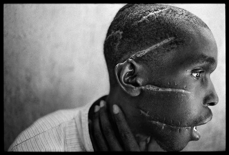 James Nachtwey, A Hutu man at a Red Cross hospital in Nyanza, Rwanda, 1994   Placements:  PEITO & ABD | COSTAS & GLÚTEOS |