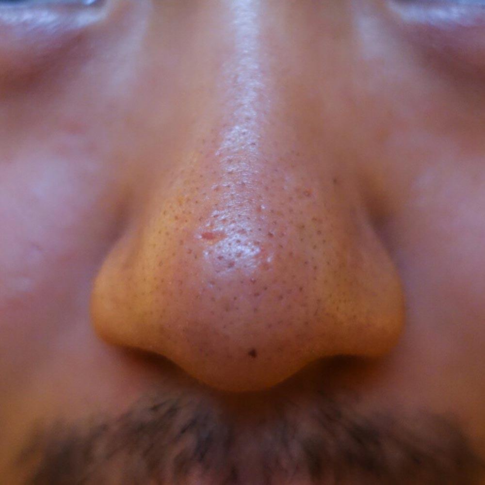 Blackhead  atau komedo bertebaran di hidungku :D