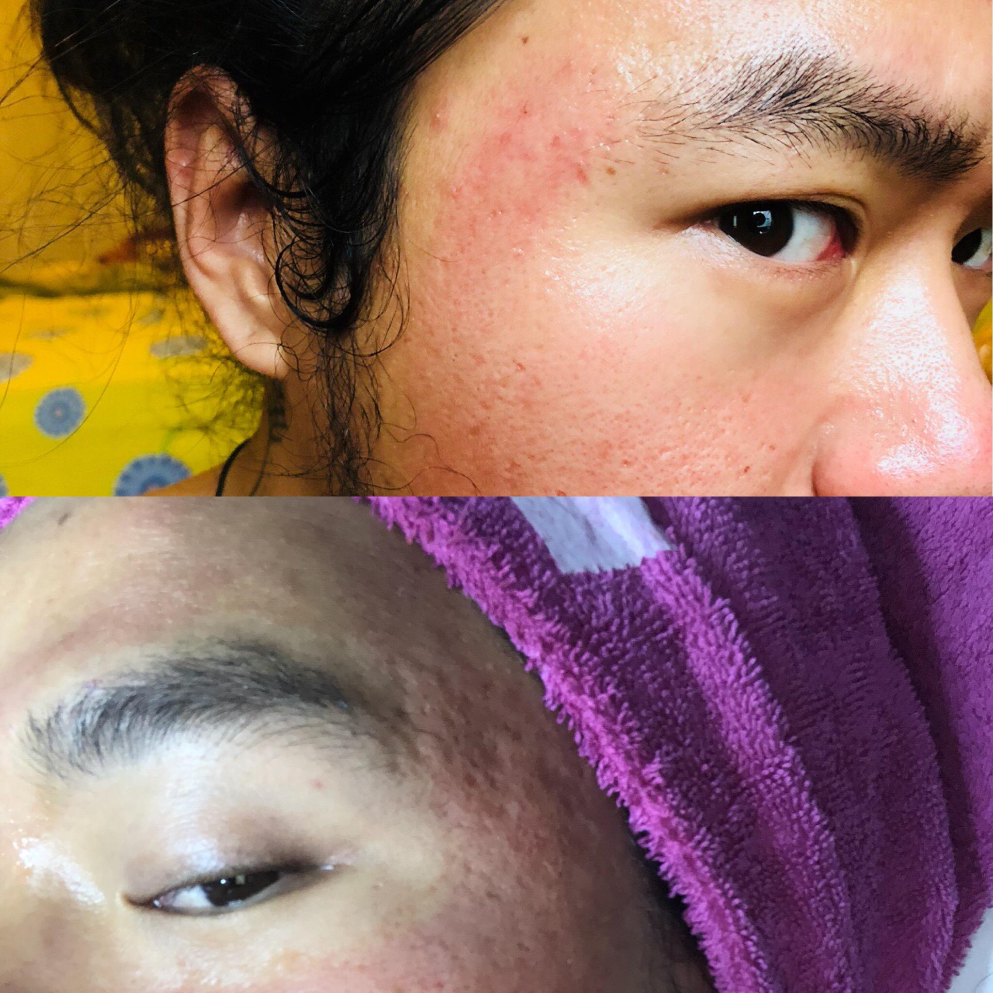 atas: after - bawah: before