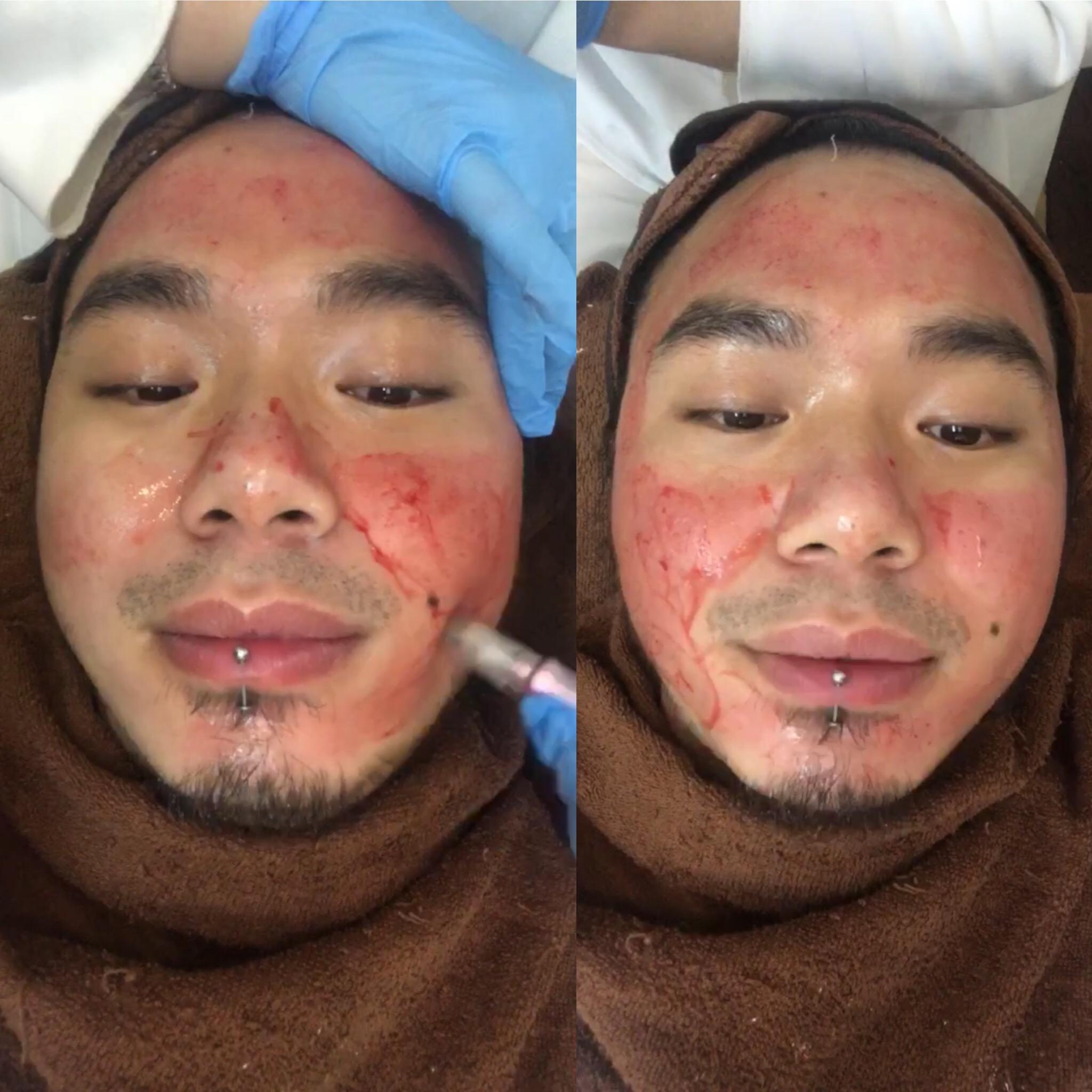 Vampire Facial HIV Asoka Remadja