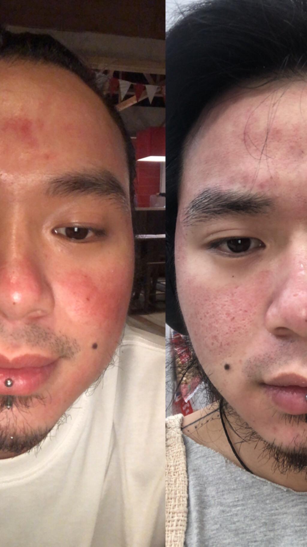 kiri 1 hari setelah vampire facial (29-4-2019) kanan 1hari setelah vampire facial (22 January 2019)