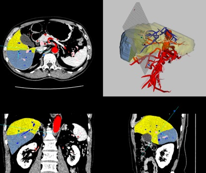 5-4-liver5.jpg