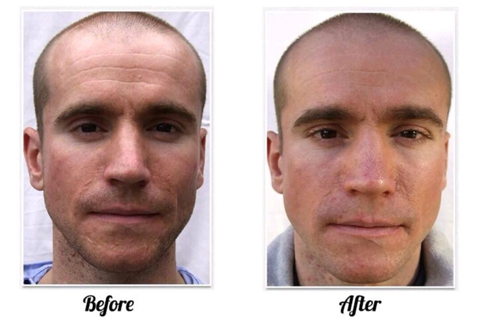 Microdermabrasion before and after.jpg