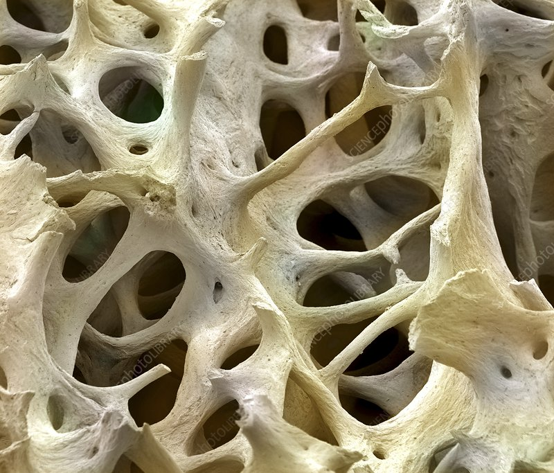 Coloured scanning electron micrograph (SEM) of cancellous bone tissue.  Photo by Steve Gschmeissner/Science Photo Library