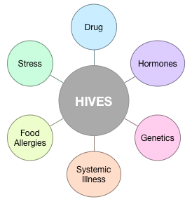 Hives (Urticaria) - Natural Treatment & Natural Remedies