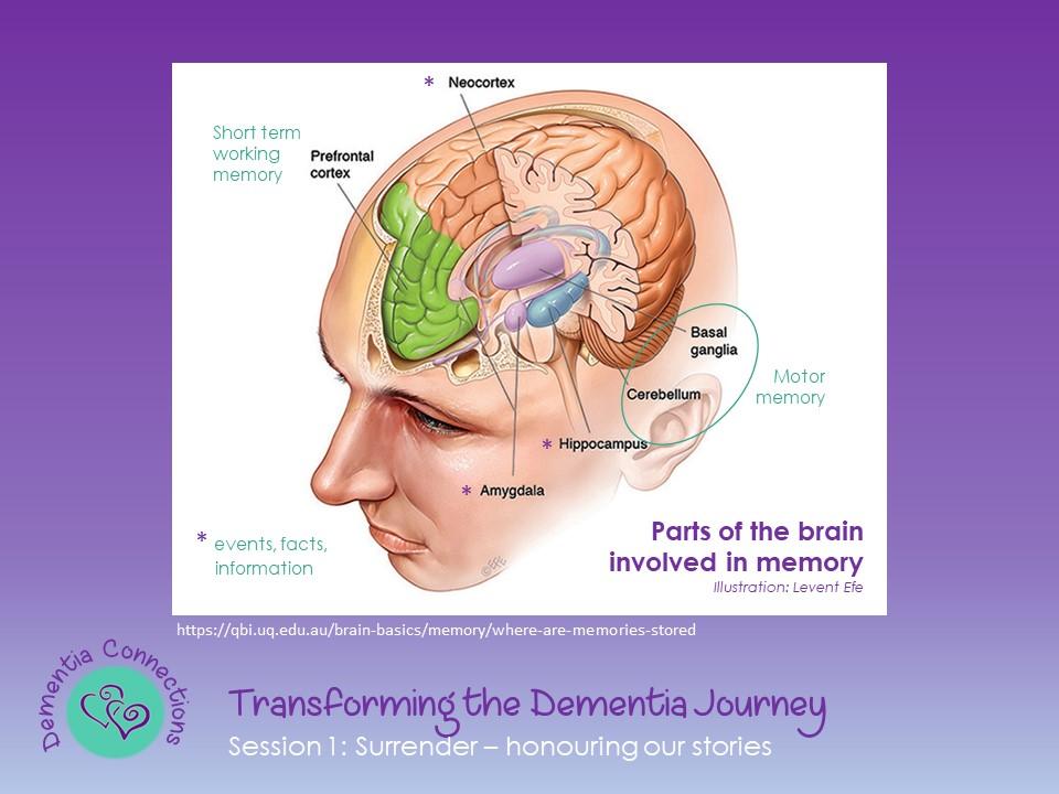 Dementia Workshop
