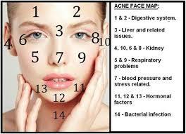 Acne map.jpg