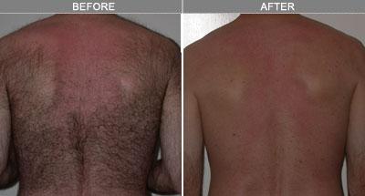 hair removal 3.jpg
