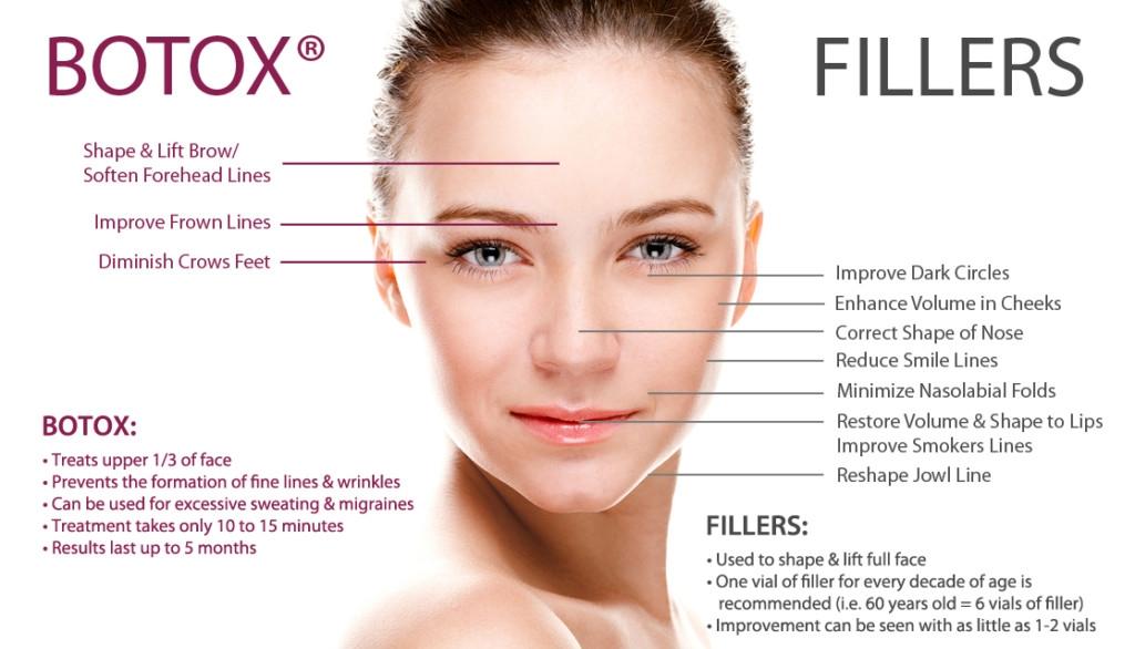BotoxFillersInfographic-4-1-1024x659.jpg