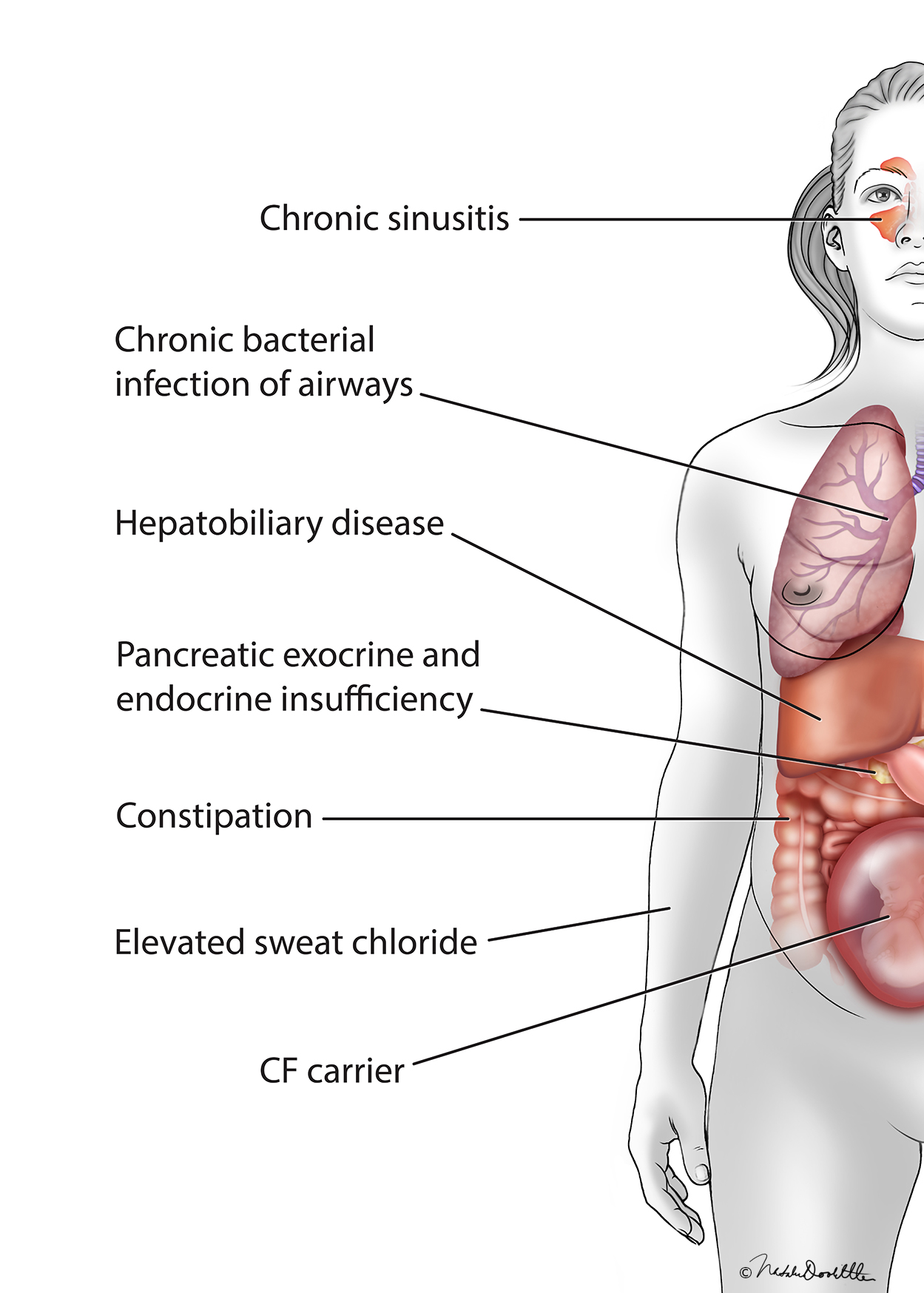 Cystic Fibrosis Complications