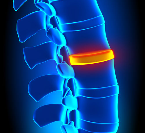 Back-Pain-Disc-Small.jpg