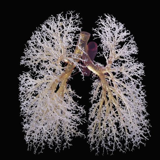 Artwork: resin cast of lungs bronchi tree