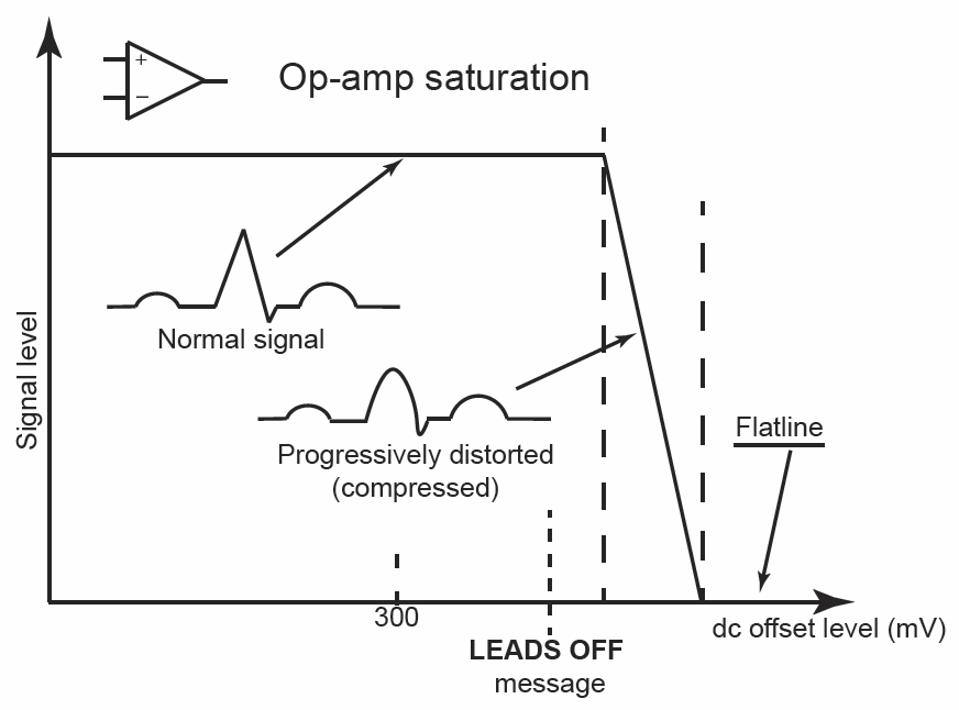 "Figure 1: With dc offset, the signal is at first completely unaffected, before a region of progressive distortion is reached finally ending in flat line on the ECG display. Good design ensures the indication to the operator (e.g. ""LEADS OFF"") appears well before any distortion"
