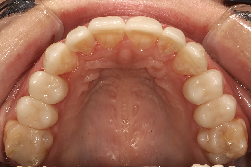 Final restorations in mouth