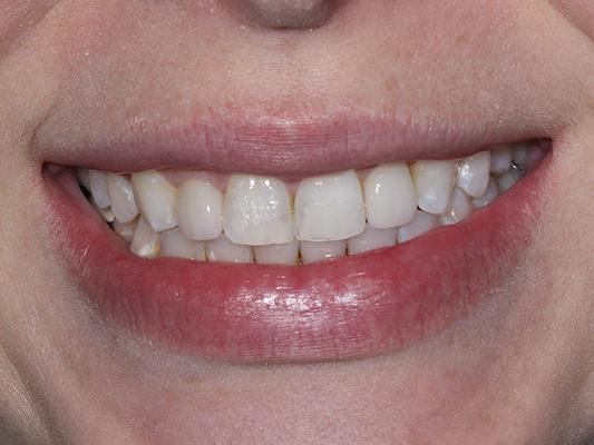 Crowns on 2 teeth & bonding