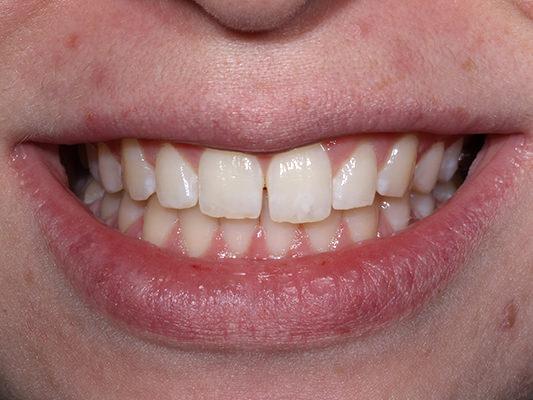 Patient unhappy with gap between front teeth