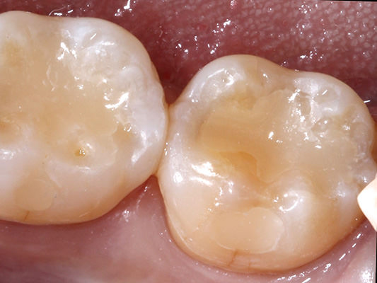 Removed decay and replaced with new tooth-colored fillings