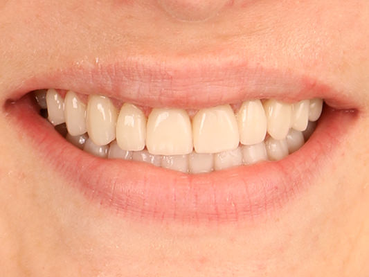 Restored with 10 upper porcelain veneers and crowns