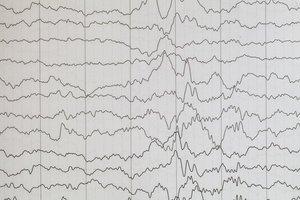 Danish Care Technology er danmarks førende producent af epilepsialarmer.