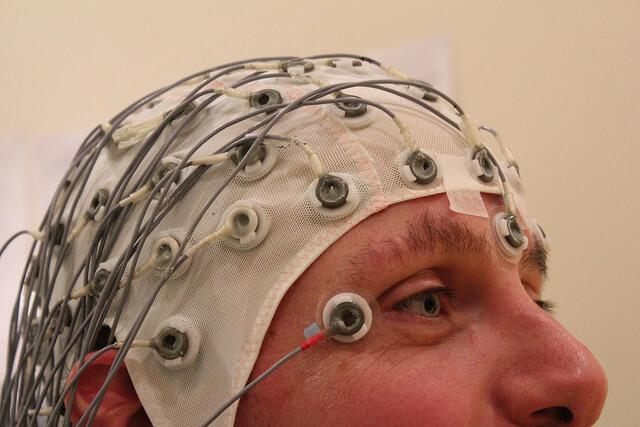 EEG benyttes ofte til  diagnosticering  af epilepsi. Det tonisk-kloniske anfald er nok det mest kendte af de mange varianter.