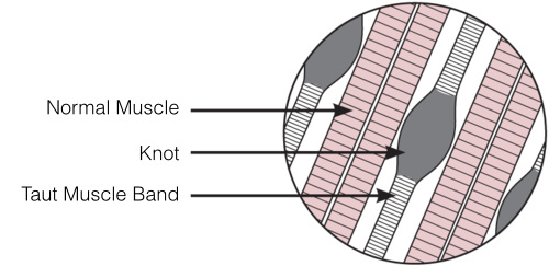 Muscle Knot Diagram