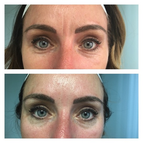 Thermalift Treatment Between Eyes and Forehead