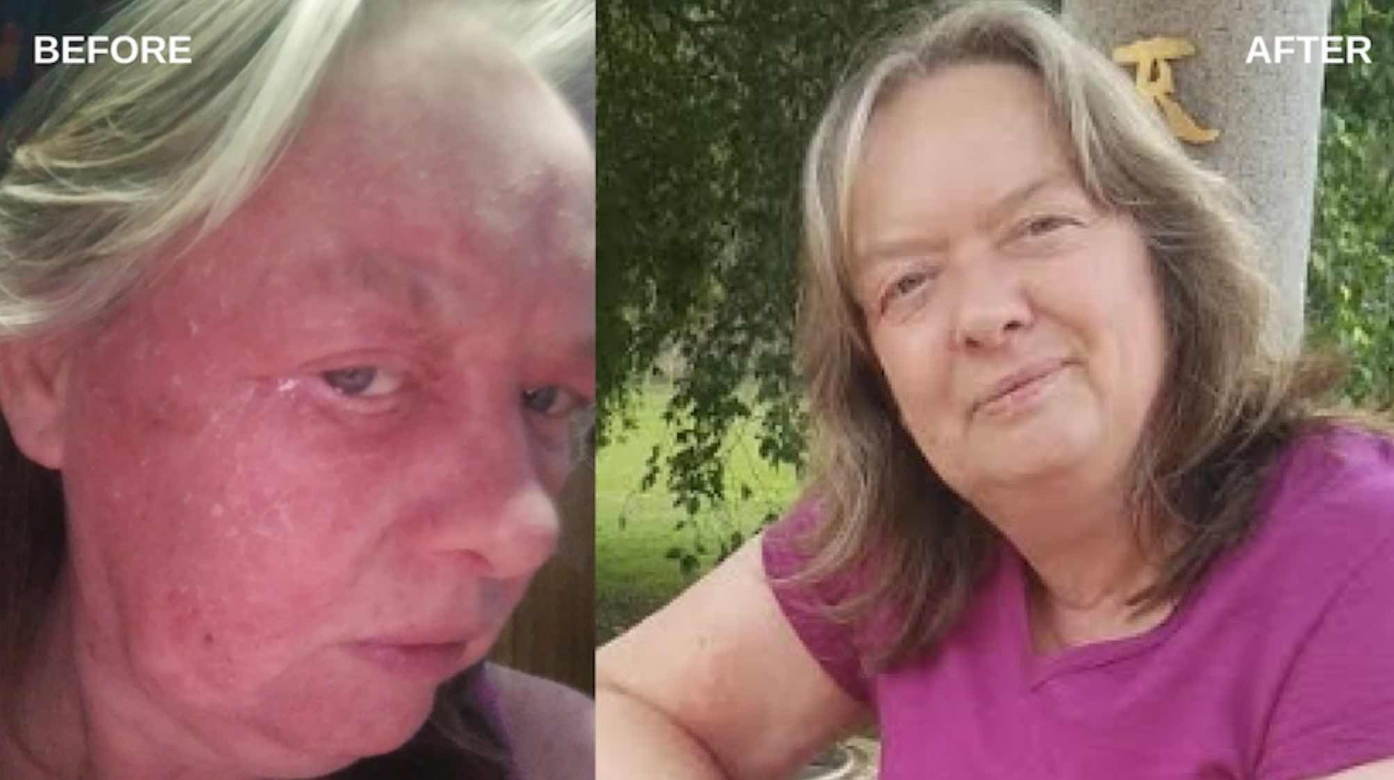 Julie Lowe healed her skin condition and lowered her cholesterol on the I Feel Good Program.jpg