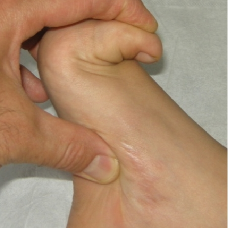 Pioneer Podiatry - Joint Hypermobility