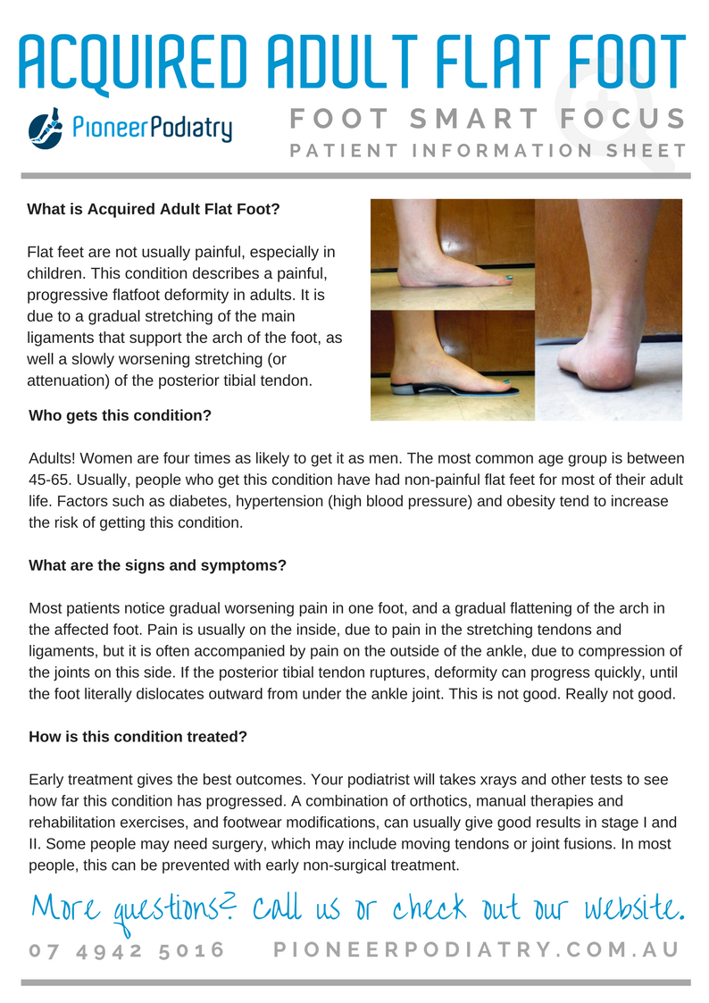 Patient Info Sheet for Acquired Adult Flat Foot