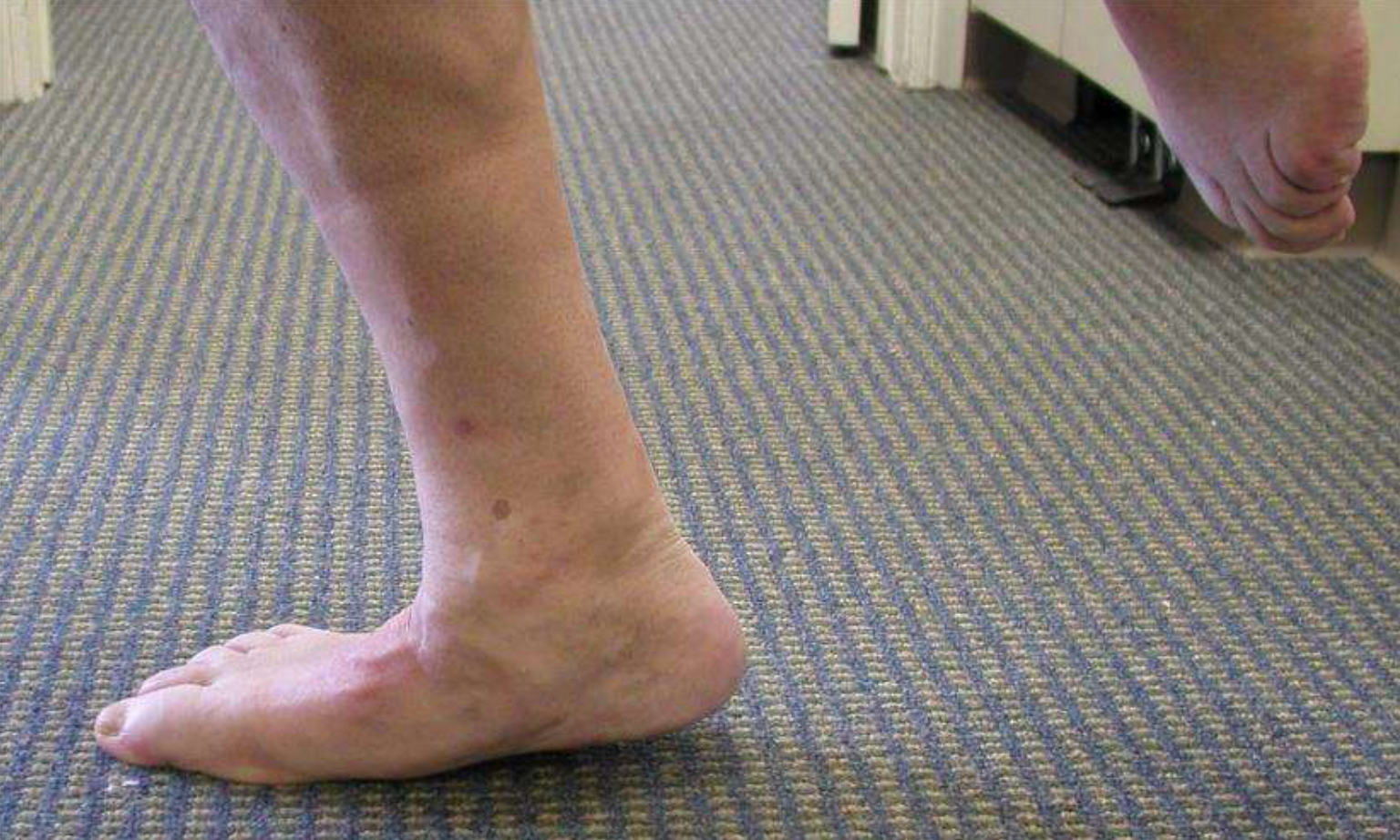 Failed single leg heel raise test. Note: Midfoot collapse and MT joint flexion.