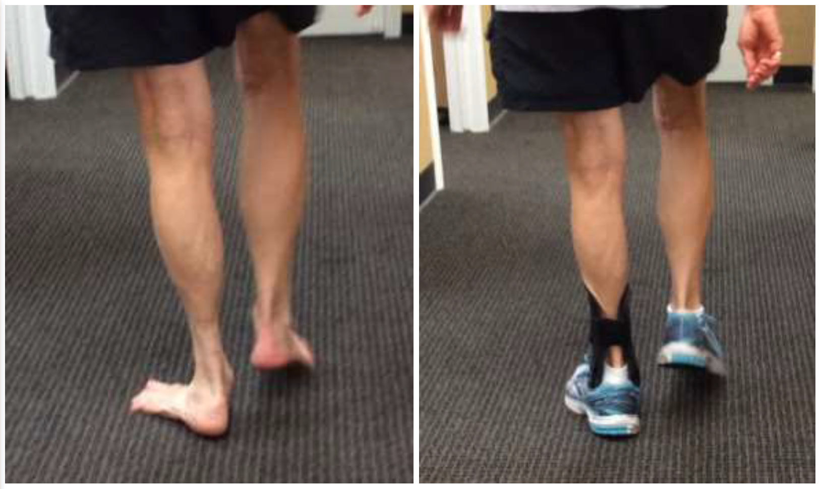 Gait analylis showing before and after fitting of custom AFO for left sided AAFF. Note: reduction of forefoot adduction, and calcaneal valgus. The gait parameters in this patient were drastically improved and much more symmetrical.