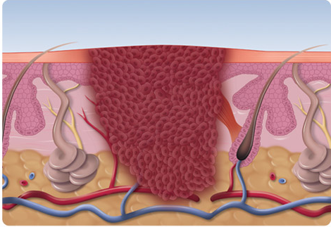 Infected tissue can exist several millimetres below the surface and can often be difficult to treat using traditional methods, resulting in either untreated tissue or significant damage.