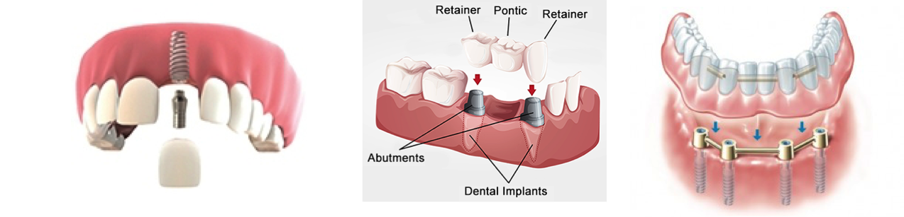Implant services with Peterson and Sunde Dentistry.