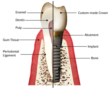 implant-services-peterson-and-sunde-dentistry.png