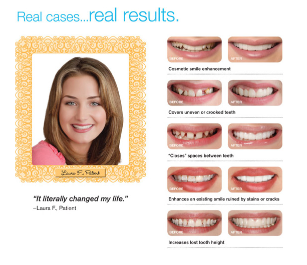 See the difference a Snap-On Smile can make.