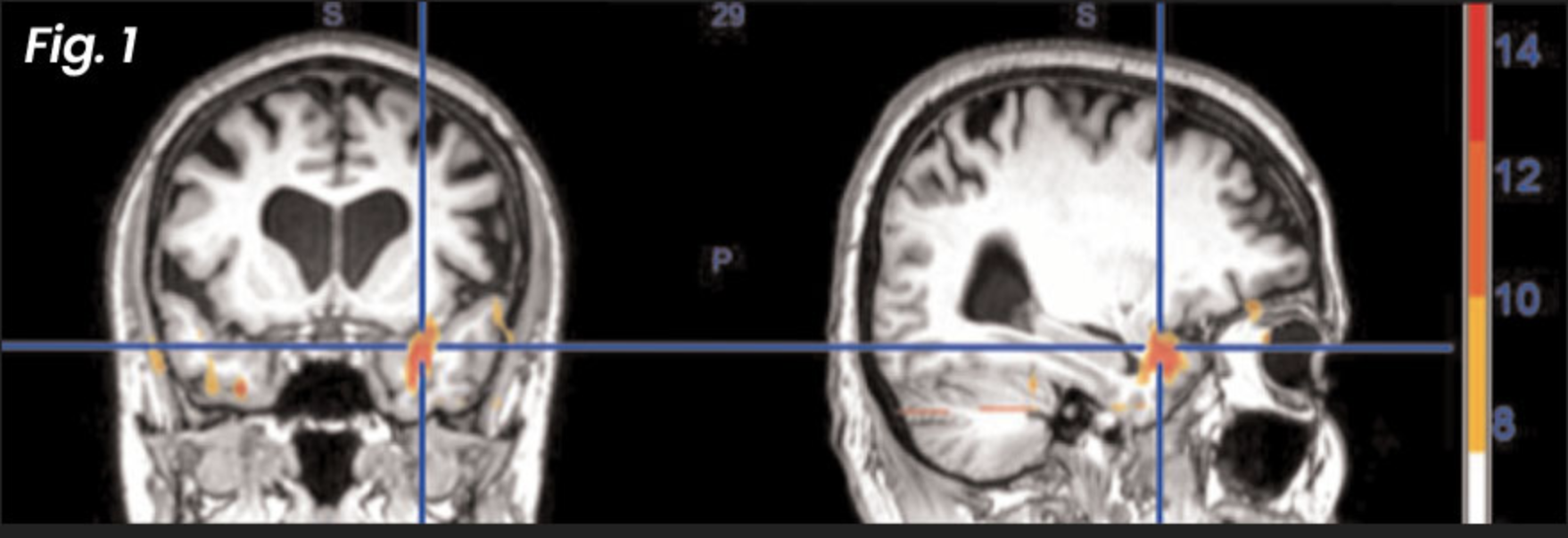 Figure 1: Before NET treatment —  with these fMRI images we can actually see what the brain looks like during the re-experiencing of a past traumatic event (before a patient is treated with NET).