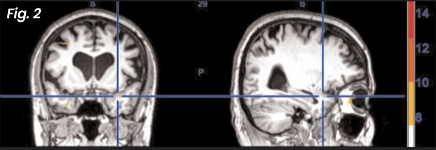 Figure 2: After NET treatment —  these post-treatment fMRI images demonstrate how the brain has returned to normal healthy functioning as a result of the NET intervention — even when the patient is again exposed to the same information that was traumatic before treatment.