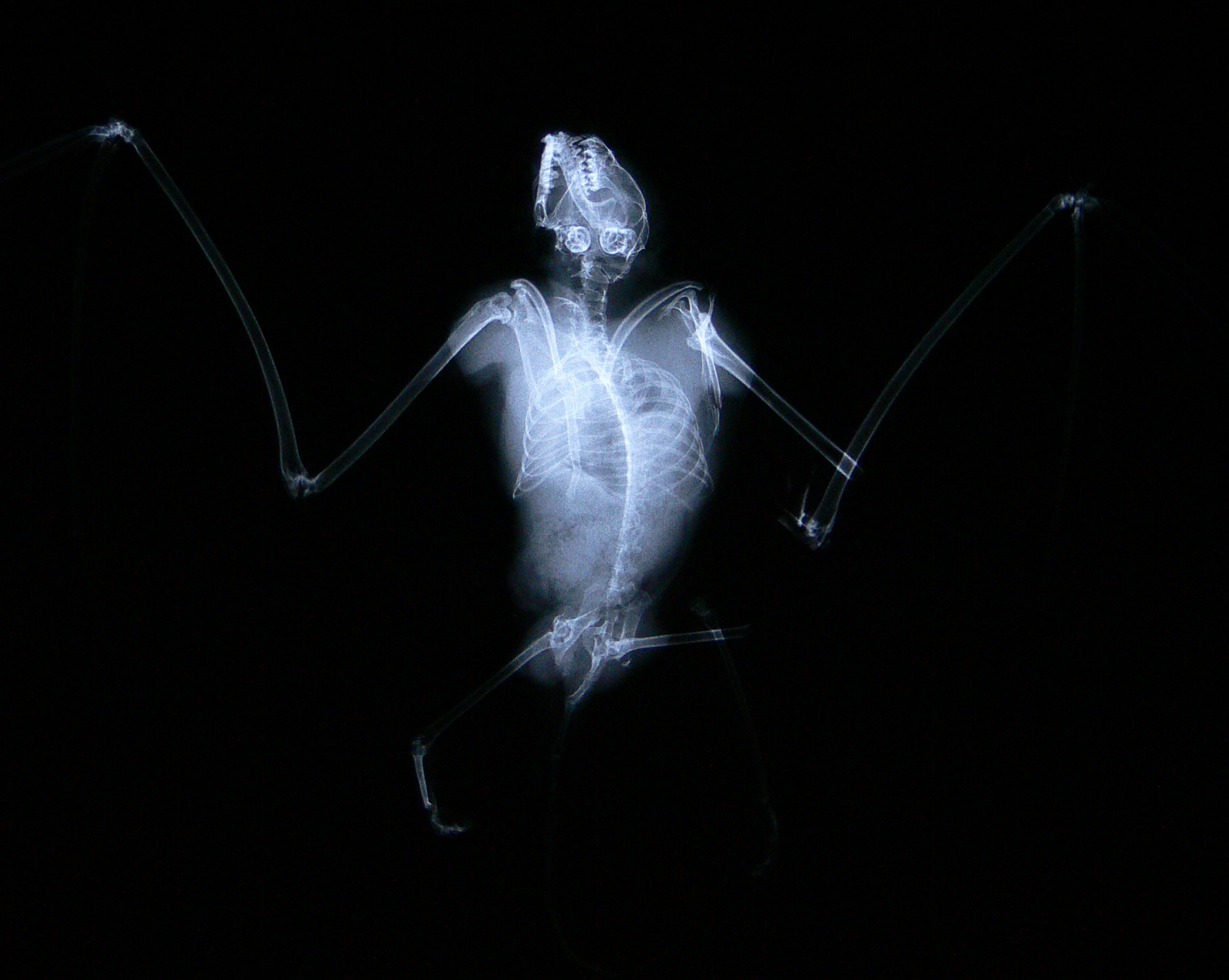 Radiograph of a dead bat collected under a wind turbine. The compound fracture in the wing is indicative of direct collision with turbine blades. Radiograph taken by Nicole Walrath.
