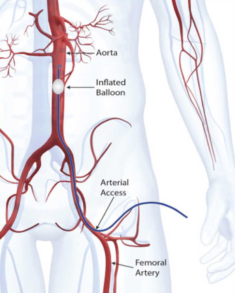 The REBOA technique utilizes the femoral artery to place the catheter and inflate the balloon in the aorta.