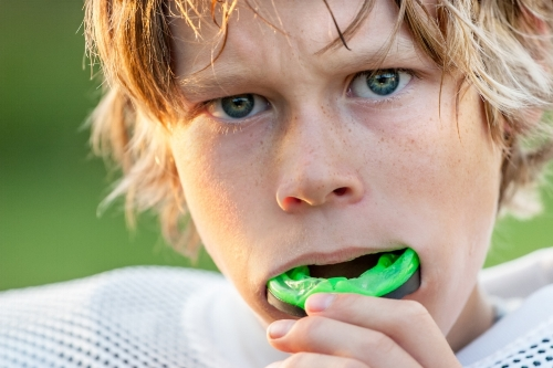Custom Fitted Mouthguards by DenturePoint