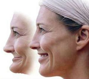 problems-with-complete-dentures-300x267.jpg