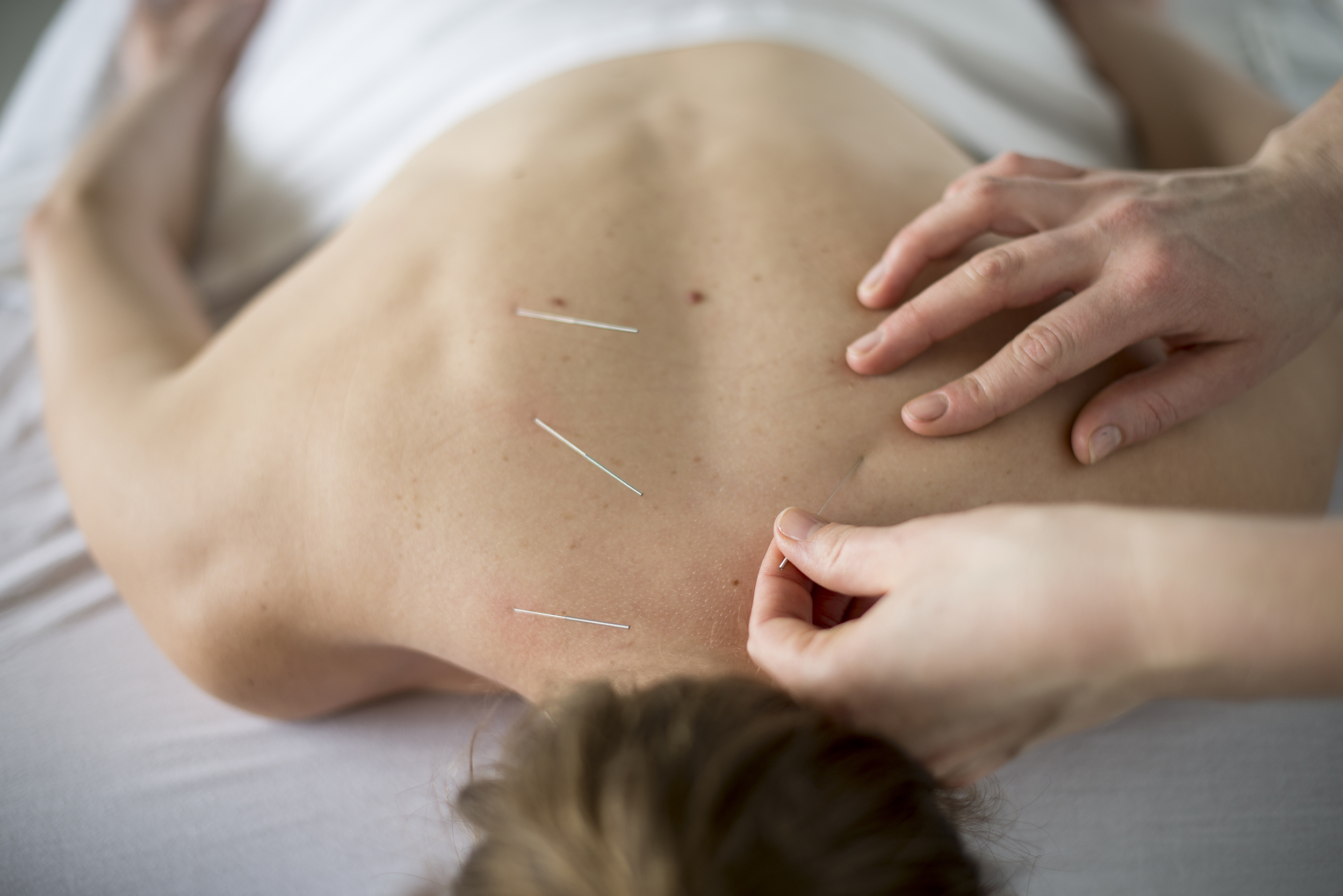 Acupuncture Needle - True Health and Fitness
