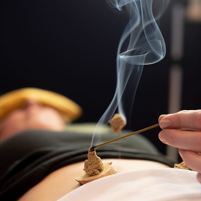 Runny nose and drainage from allergies? Try a deluxe moxibustion treatment from Emily! 🤧🔥☯️ #moxibustion #moxa #ginger #allergies #wellness #integrativemedicine #greensburgpa