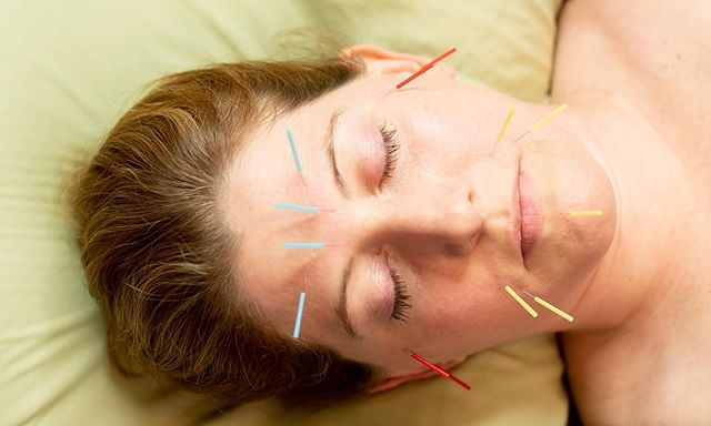 Give yourself the gift of summertime self-care! Emily had a rare cancellation and now has availability for a someone to have a Deluxe Acupuncture Treatment on Wednesday, 7/31 at 2:00pm. Deluxe Acupuncture Treatments are highly focused treatments with options for cosmetic, whole-body cupping, specialty acupuncture and gua sha techniques, and unique moxibustion treatments. Take your acupuncture experience to the next level! Available for current acupuncture patients of Emily only. Call the office for more information or to schedule, (724) 205-6377 🔥☯️💆🏻♂️#acupuncture #cosmeticacupuncture #facialrejuvenation #wellness #selfcare #greensburgpa #moxibustion #cupping #guasha